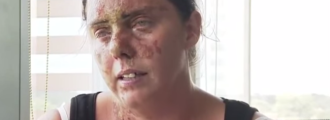 Woman Attacked by Muslims For What She Was Wearing. Look at What They Did To Her